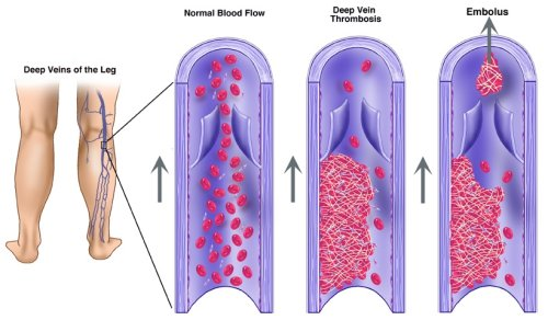 Deep-venous-thrombosis-causes